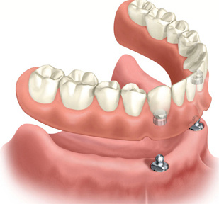 Porcelain and Composite Acrylic Dentures
